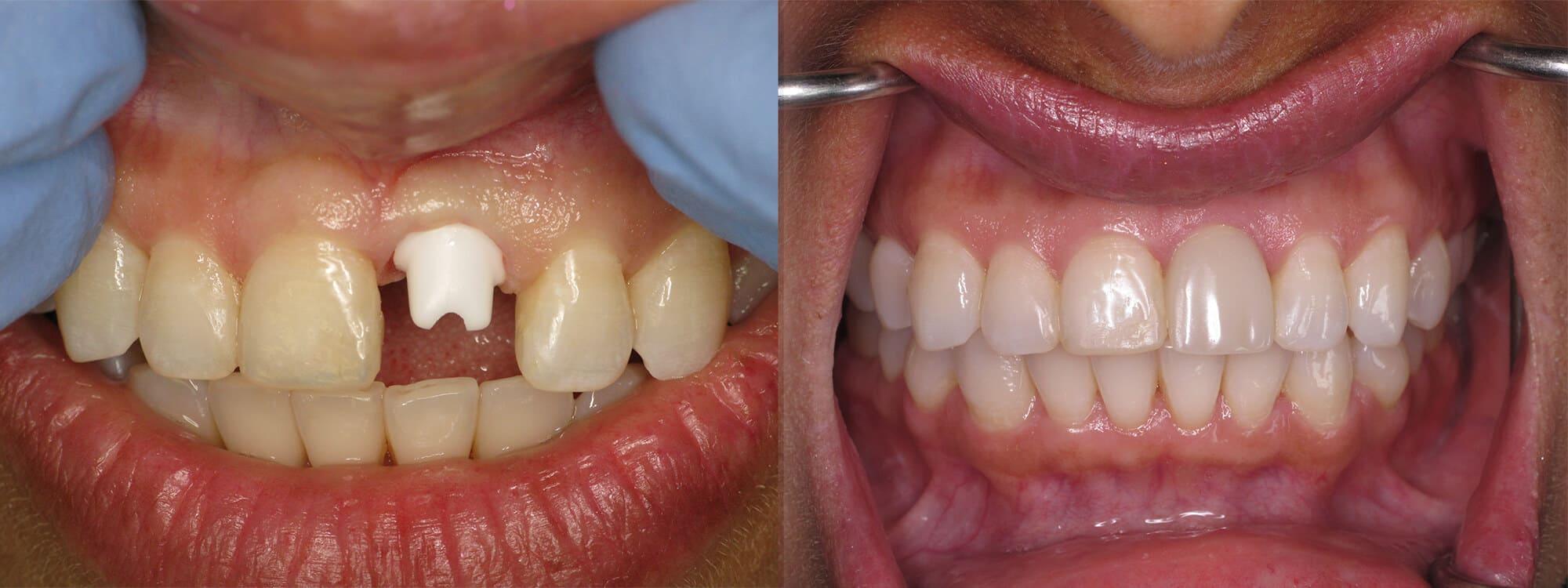 Holistic Dental Alternatives