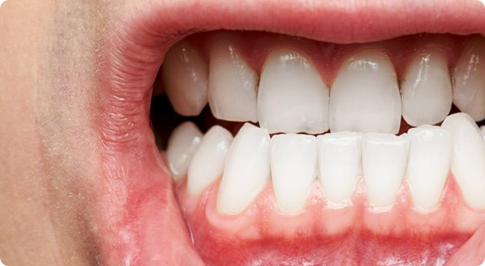 Can Black Mold Cause Periodontal Disease?